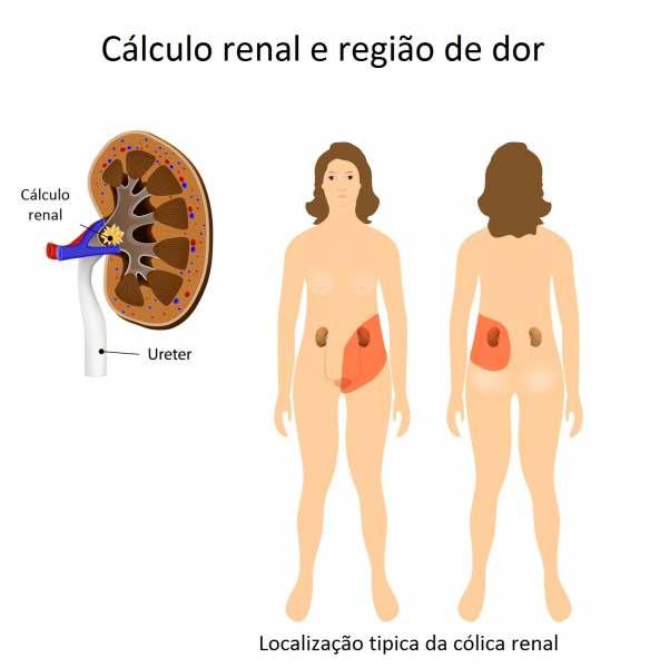 Ureterolitotripsia Flexivel   Colocacao De Cateter Duplo J